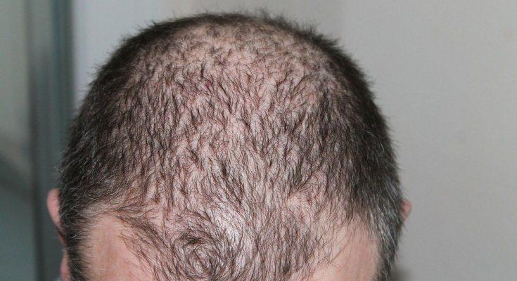 En hårtransplantation är ofta en oslagbar åtgärd mot oönskat håravfall
